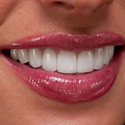 Porcelain Veneers Dentistry