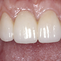Esthetic Bridge Treatment