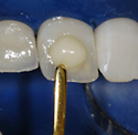 Cosmetic Dental Implants