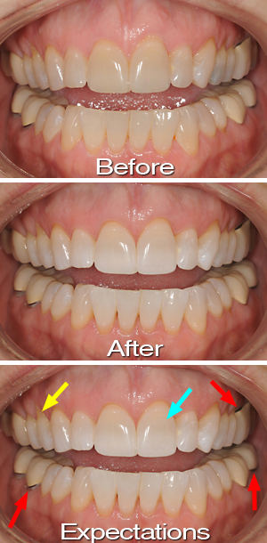 Danville CA Cosmetic Dentist Tooth Whitening Expectations