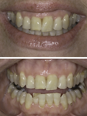 Smile Design Blog 2-Principles Violation C