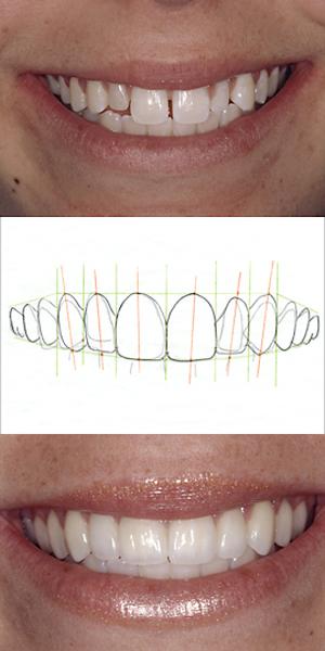 Smile Design Blog 3-Treatment Blueprint C